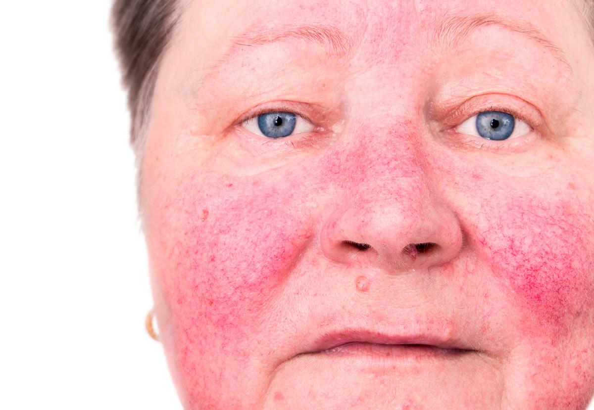Lupusul eritematos cutanat - Dr. Mihai Lupu