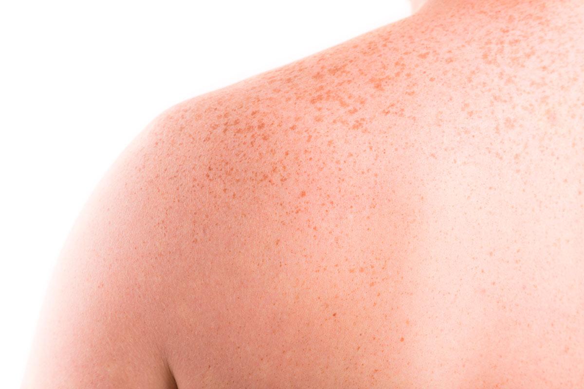 manchas en la piel del sol